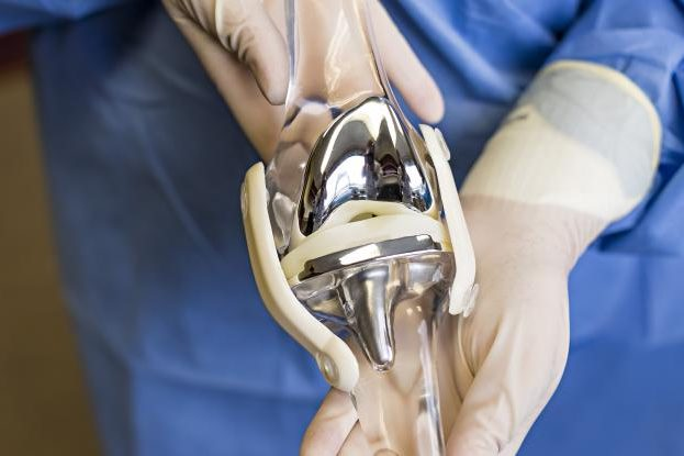 COMPLEX PRIMARY KNEE REPLACEMENT